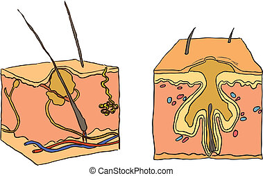 Illustration for acne - Vector illustration of a medical...