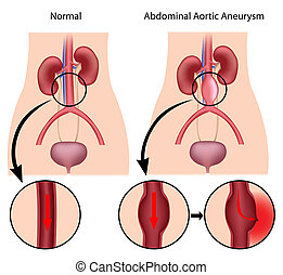 abdominal, Aórtico, aneurysm, eps8