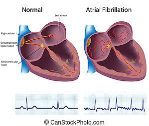 Atrial fibrillation, eps8