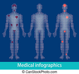 Medical info-graphics. Suitable for medical brochures,...