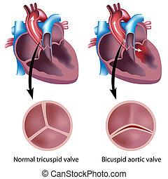Coração, válvula, defeito, eps8