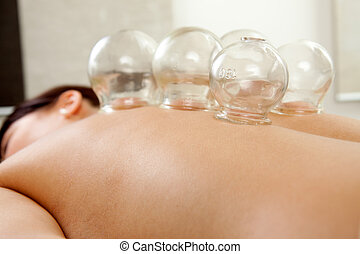 Fire Cupping - Fire cupping cups on back of female patient...