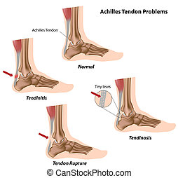 Achilles tendon problems,