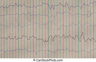 Brain waves on encephalogramme, EEG