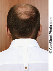 bald spot - head of the man with hair loss