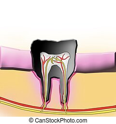 dental cross-section illustration