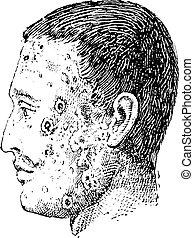 Human face infected with impetigo vintage engraving - Old...