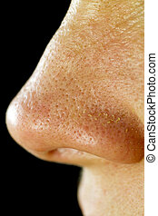 Women's, Fatty, Nose, Pores