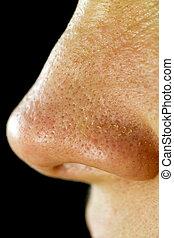 Women's, Fatty, Nose, Pores