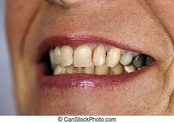 macto, dente, mulheres