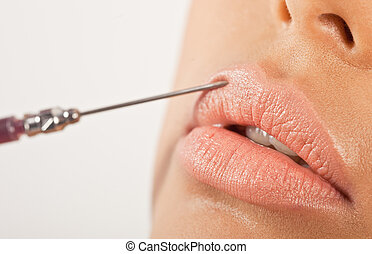 Lip Enhancement Treatment. Closeup of a hypodermic needle...