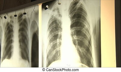 doctors regard X-ray
