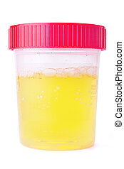 Urine Sample - A fresh urine sample in a medical container...