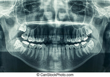 Dental xray - Panoramic dental X-Ray