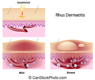 Rhus contact dermatitis, eps8 - Urushiol oil induced contact...
