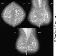 Breast cancer mammography in 3 projections - Mammography in...