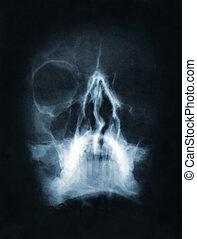 imagem, cranio, Raio X