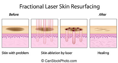Fractional Skin Resurfacing, eps10 - Fractional Laser Skin...
