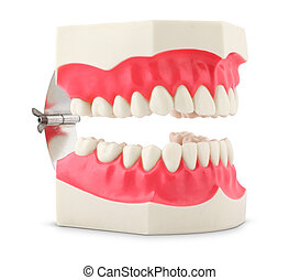 Dental model of teeth isolated on white