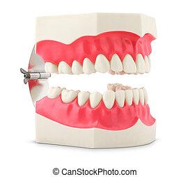 dentale, modello, denti
