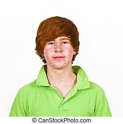 pelo, niño, atractivo, Pubertad, rojo