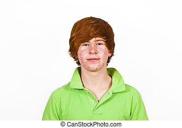 atractivo, niño, Pubertad, rojo, pelo