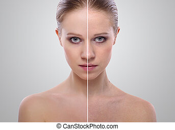 effect of healing of skin, beauty young woman before and...
