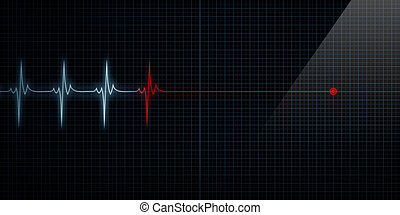 Heart Monitor Flat Line Death - Horizontal Pulse Trace Heart...