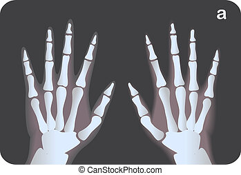 X-ray image of hands, vector illustration