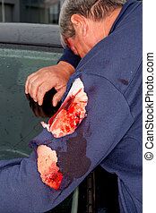 Injured man with a bloody arm wound