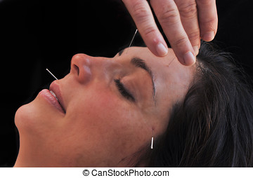 Acupuncture, in profile