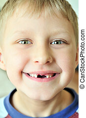 smile without tooth - little boy smiling without tooth in...