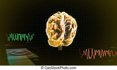 gold 3d brain wave screen - X-ray Brain to represent the...