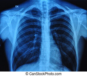 X-Ray Image Of Human Chest front view and lateral view