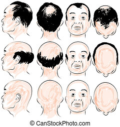 Asian Male Baldness Pattern - An image of a asian male...