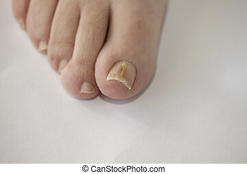 Onychomycosis - Foot with fungal toe nail infection