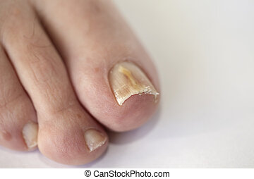 Nails with fungal infection - Foot with fungal toe nail...