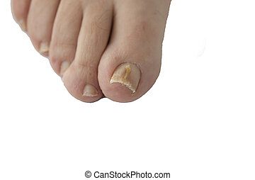 Fungal nail infection isolated - Foot with fungal toe nail...