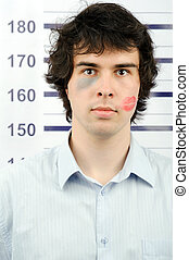 Convict - An image of a man with a kiss and a bruise on his...