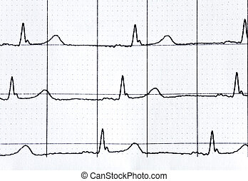 heart rate in graph on a paper from the medical device