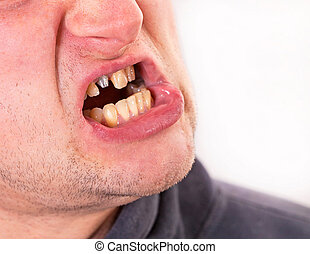 Young man face with broken tooth on grey background