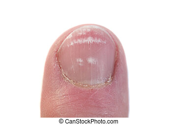 Closeup of a Fingernail with leukonychia - Fingernail...