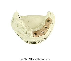 gypsum model for bridge implant on a white background