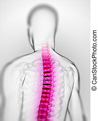 Painful spine - 3d rendered scientific illustration of a...