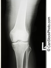 X-rayed the leg and knee