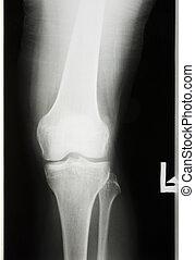 radiografiado, pierna, rodilla
