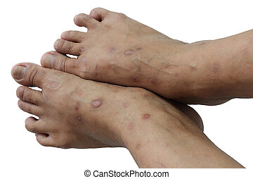 Psoriasis is a chronic - non-contagious disease that affects...