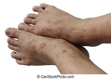 Psoriasis, crónico