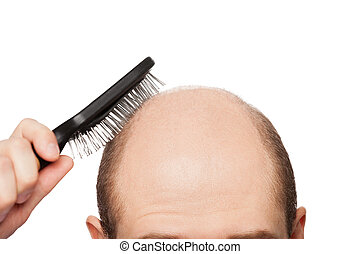 Bald man head - Human alopecia or hair loss - adult man hand...