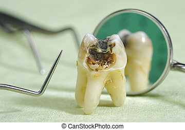 tooth with caries